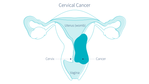 small resolution of cervical cancer could be causing brown discharge