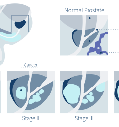 prostate cancer symptoms stages of prostate cancer diagram [ 3840 x 2300 Pixel ]