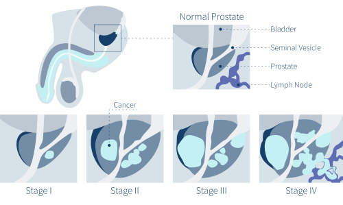 small resolution of prostate cancer symptoms stages of prostate cancer diagram