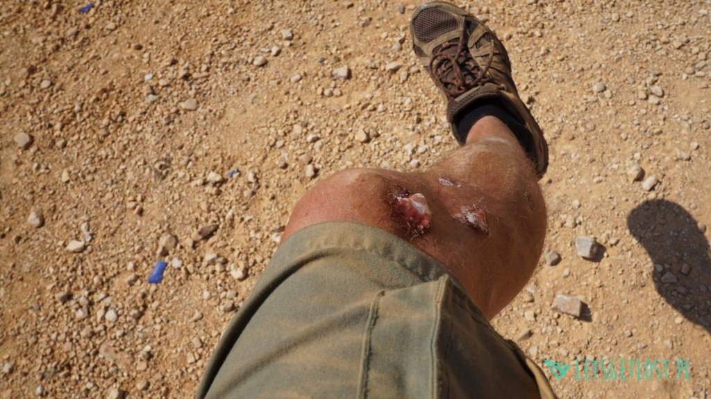 Małe zadrapania po wypadku na motocyklu