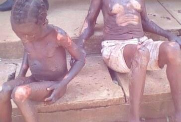 Nation : M. Touadéra et M. Sarandji, votre pouvoir est plus important que la vie des centrafricains !