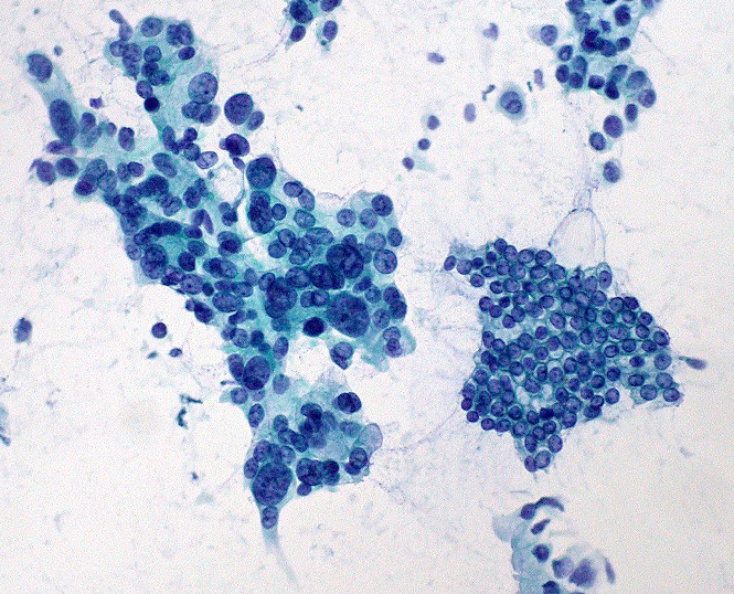 Microscope Image Of Pancreatic Cancer--the Blue Irregular Circles On The Left--and Normal Pancreas Cells--the Smaller Circles On The Right