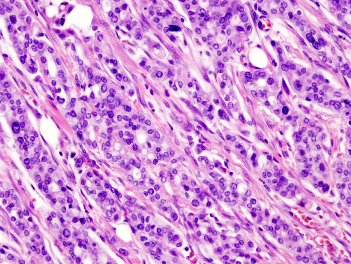 Micrograph of pancreatic ductal adenocarcinoma showing cells in pink and dark purple with white spaces between.