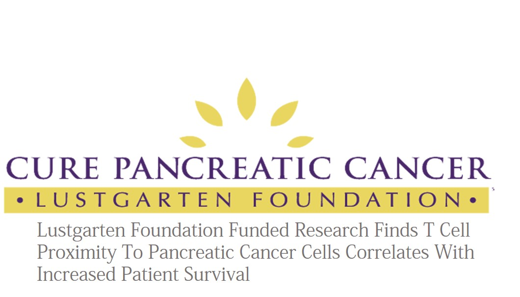 Lustgarten Foundation-Funded Research Finds T Cell Proximity To Pancreatic Cancer Cells Correlates With Increased Patient Survival