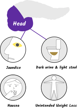Illustration of symptoms pancreatic cancer for the head of the pancreas with four icons, for mobile