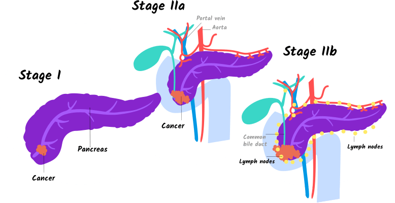 Illustration of stages I, IIa and IIb pancreatic cancer for tablet