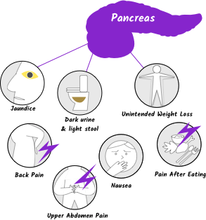 Pancreatic cancer symptoms with seven symptom icons, hero version