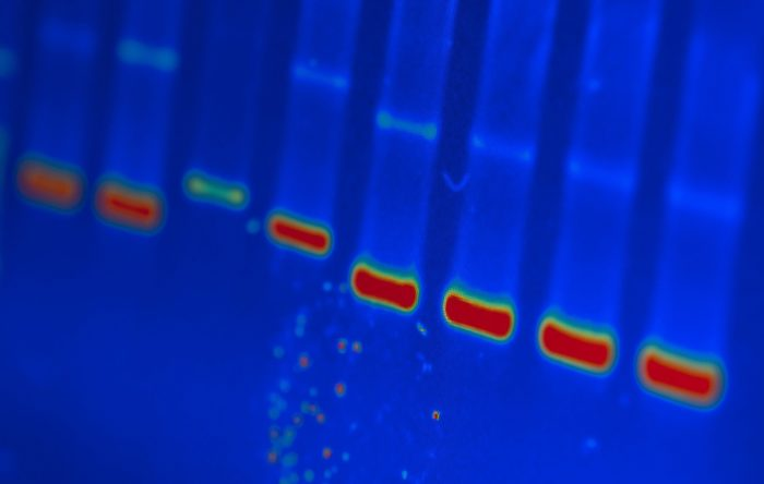 DNA analysis image with red, green and light blue bars in vertical columns, all in royal blue.