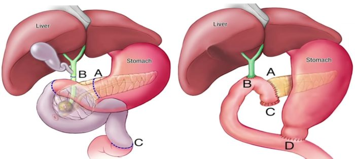 anatomical illustration of the pancreas, liver, gall bladder and intestines before and after Whipple procedure