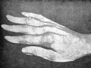 Mâna dreaptă a lui Paganini, mulaj în ipsos