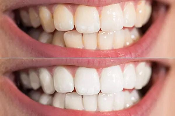 How Soon Can I Drink Coffee After Teeth Whitening - TeethWalls