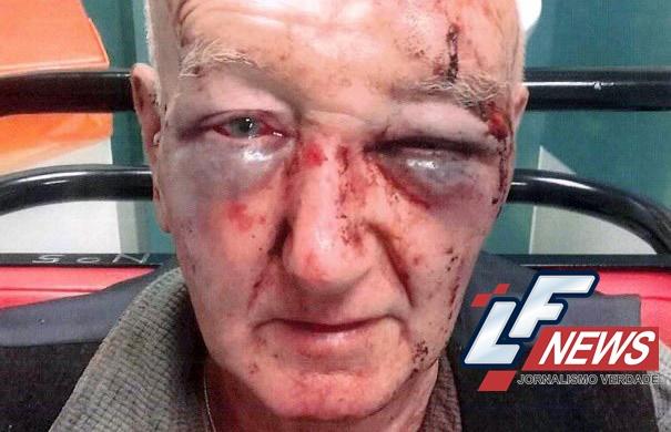 Idoso de 70 anos é agredido após pedir que homem parasse de urinar em frente a sua casa