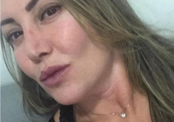 Paisagista mostra rosto em recuperação, 14 dias após agressões
