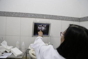Saúde intensifica ultrassons da próstata para rastreio de câncer