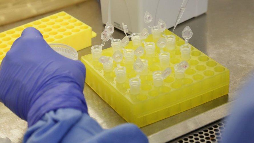 Passa de 300 o número pessoas curadas do novo coronavírus na Bahia