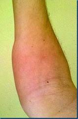 Der Arm drei Tage nach dem Unfall