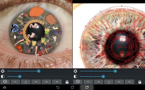 Eye Diagnosis screenshot 5