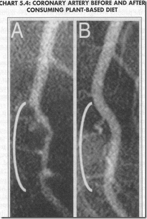 artery before and after plant-based diet