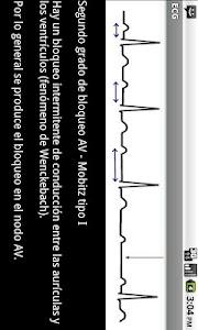 Electrocardiograma ECG Tipos screenshot 4