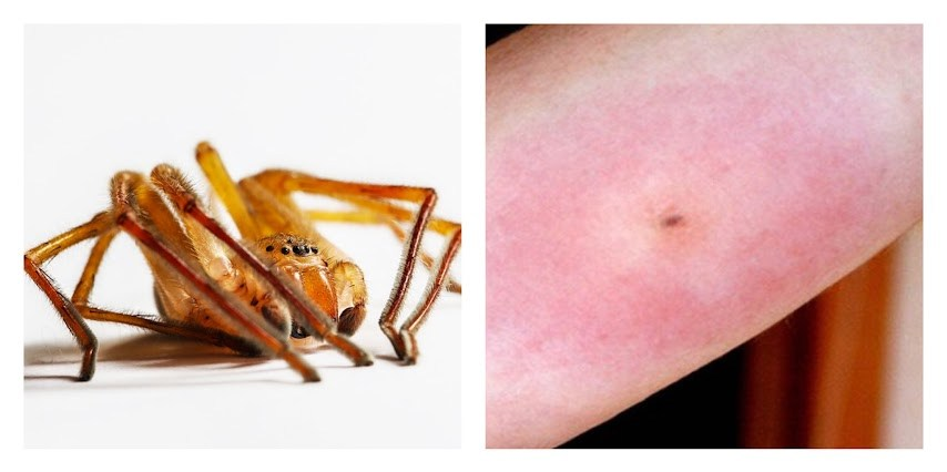 arañas-picaduras-que-hacer-como-curarlas