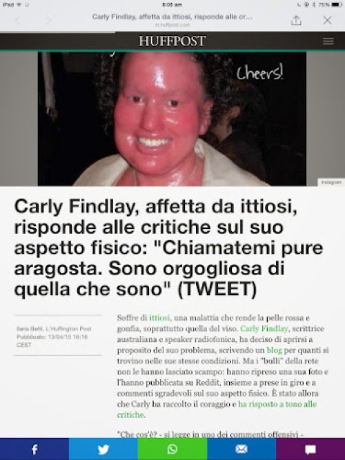 Huffington post article about Carly findlay