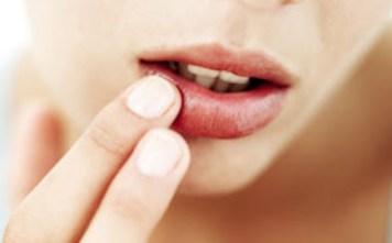 Obat Berengen Di Sudut Bibir