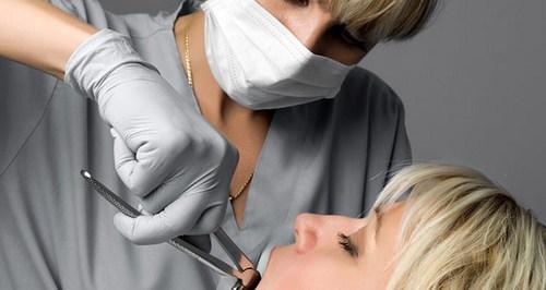 Cara Menghentikan Pendarahan Setelah Cabut Gigi