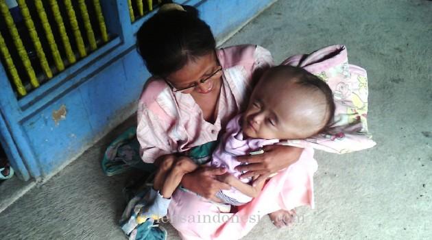 Pengobatan Bayi Hidrosefalus Tanpa Operasi