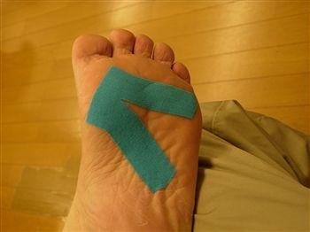 足の安定性が出るテーピング方法
