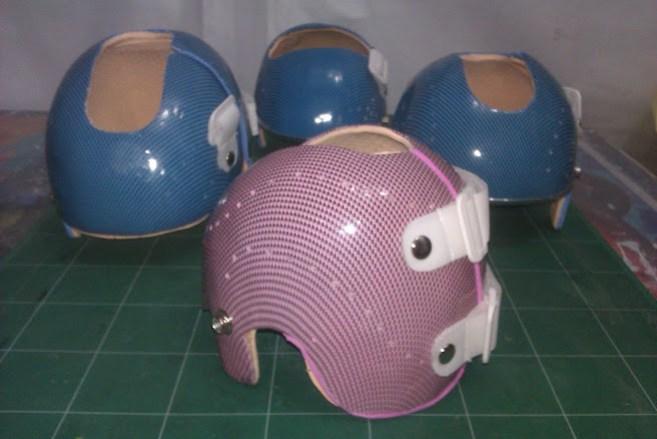 torticolis-congenita-plagiocefalia-casco-ortopedico-bebe