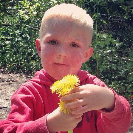 Picture of Ashton, young boy with Sturge Weber syndrome