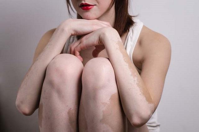 Obat Penyakit Kulit Vitiligo