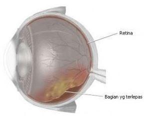 sakit mata ablasi