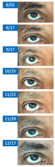 Eyebrows-progression_thumb2