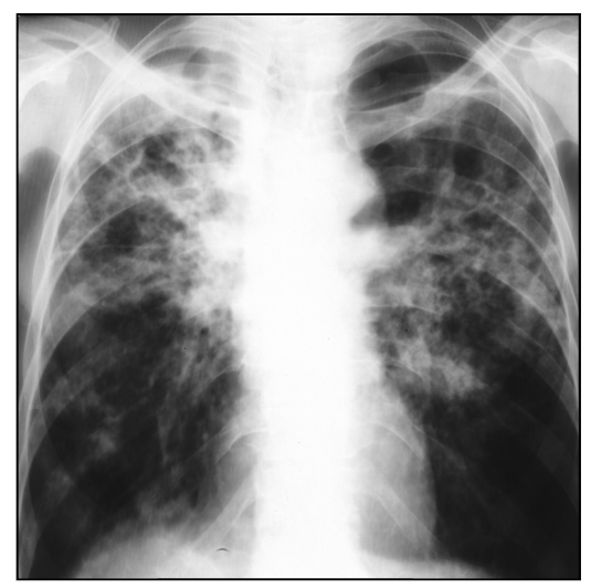 Chronic disseminated pulmonary tuberculosis - Radiograph in direct projection