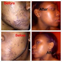 How I Got Clear Skin In Just 2 Months!!!! Clear Skin Journey