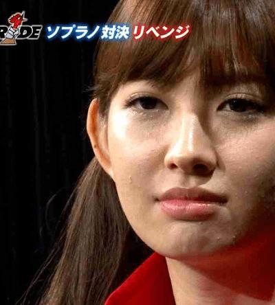 肌荒れがヤバイと話題の小嶋陽菜ちゃんの画像その1