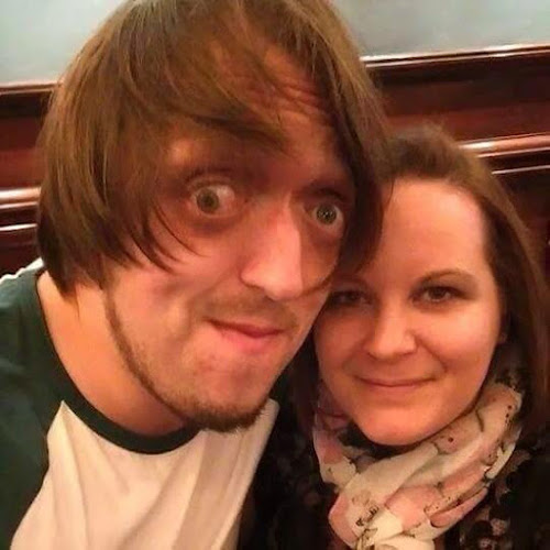 Steve Carruthers from The Undateables with his wife Vicky.
