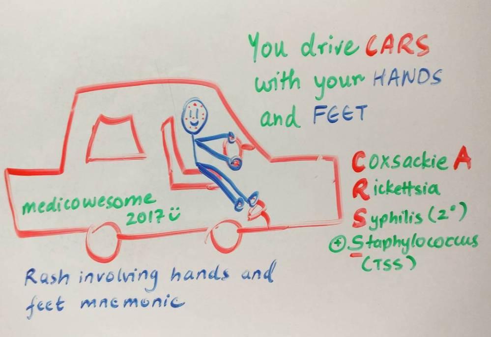 medium resolution of rash involving hands and feet mnemonic