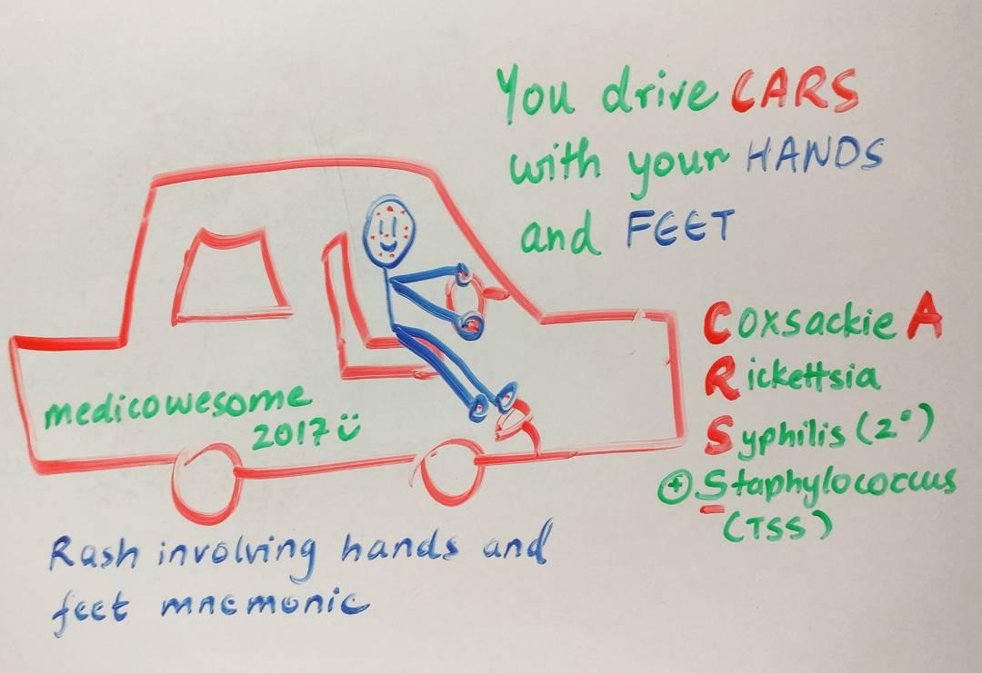 hight resolution of rash involving hands and feet mnemonic