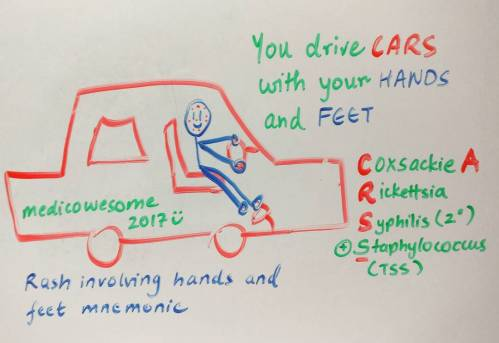 small resolution of rash involving hands and feet mnemonic