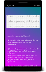 ECG Interpretation APK