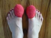 ingrown toenails fixed