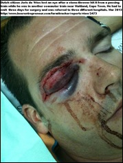 DE VRIES JORIS DUTCH CITIZEN LOSES EYE AFTER STONE THROWN AT METRORAIL MAITLAND CAPE TOWN MAR212012