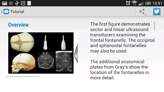 Cranial Ultrasound screenshot 5