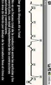 Electrocardiograma ECG Tipos screenshot 3