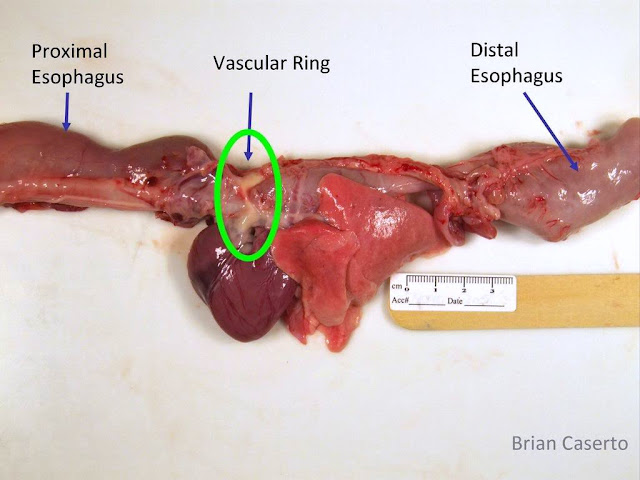 Heart, Lungs, Esophagus left side up, the head is toward the left.  The esophagus proximal and distal to the heart is dilated.