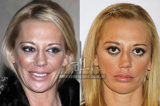 belen esteban antes y despues de la cirugia plastica