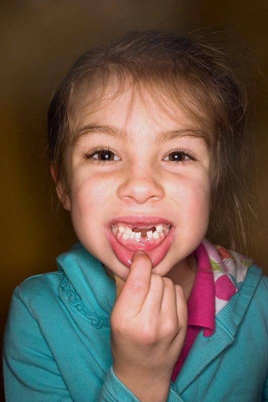 Sophia, Minus 4 Teeth