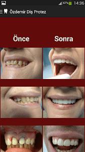 Özdemir Diş Protez screenshot 1